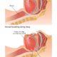 Obstructive sleep apnea (OSA): Symptoms, Treatments and Causes