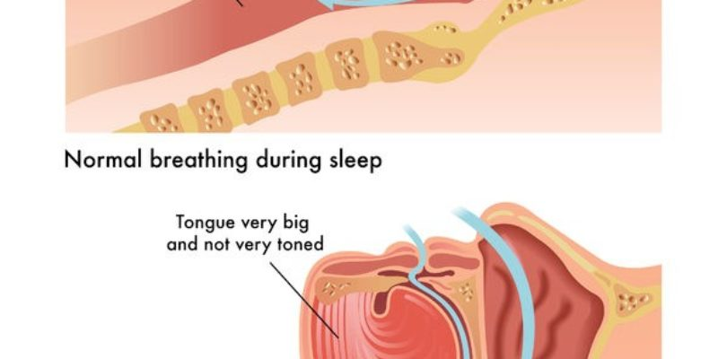 Obstructive sleep apnea (OSA): Symptoms, Treatments and Causes