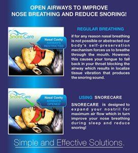 SnoreCare – Advanced Premium Nose Vents